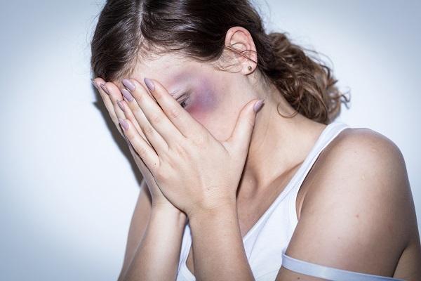 負傷する女性