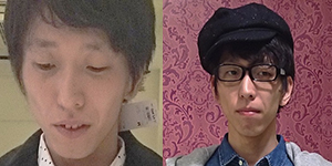 before&after1