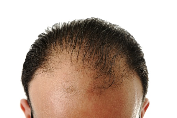 Man loosing hair, baldness